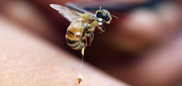 укус пчелы в член фото